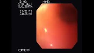 آندوسکوپی در زخم معده