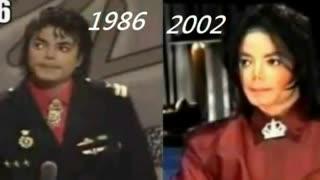 تعدادی تصاویر که به شما نشان میدهد مایکل جکسون عملهای زیبایی متعدد انجام نداده...