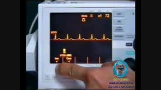 آموزش کار کردن با الکتروشوک ZOLL سری M
