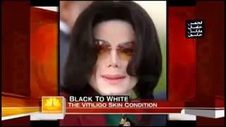 مستند تغییر رنگ پوست مایکل جکسون