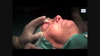جراحی افتادگی پلک یا بلفاروپلاستی , عمل بالا کشیدن پلک - زیبایی سنتر