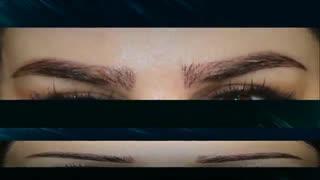 کاشت ابرو | فیلم کاشت ابرو | کلینیک پوست و مو رز | شماره107