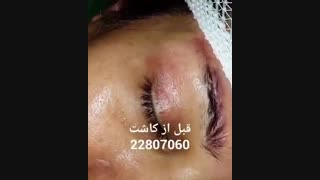 کاشت ابرو - دکتر ابدالی - 22807060