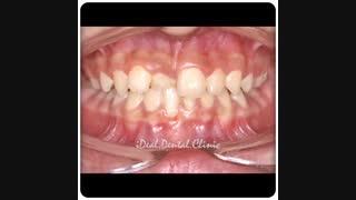 درمان کراس بایت با استفاده از درمان ارتودنسی ثابت | کلینیک دندانپزشکی ایده آل