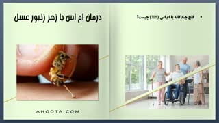 بهبود ام اس با زهر زنبورعسل