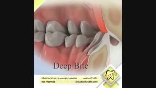 انواع ناهنجاری های دندانی   دکتر لادن طیبی