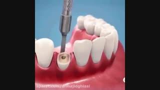 کشیدن دندان-دکترمجیدقیاسی-دندانپزشک زیبایی مشهد