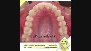 درمان ارتدنسی ثابت بدون کشیدن دندان   دکتر طیبی
