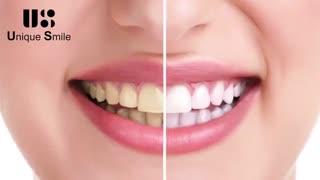 اصلاح رنگ دندان | دکتر لیلا عطایی