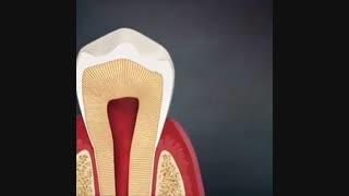 انیمیشن آناتومی دندان | دکتر مصطفی نژاد