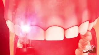 افزایش طول تاج دندان با لیزر |  دکتر مصطفی نژاد