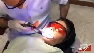 بلیچینگ دندان | دکتر مصطفی نژاد
